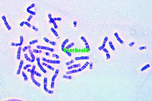 Human chromosomes in smear from culture