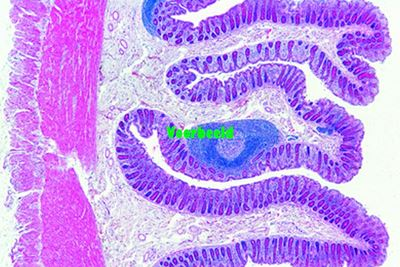 Colon, human t.s. (large intestine)