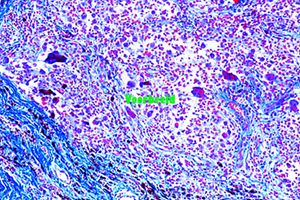 Foreign body granulome with hemosiderin